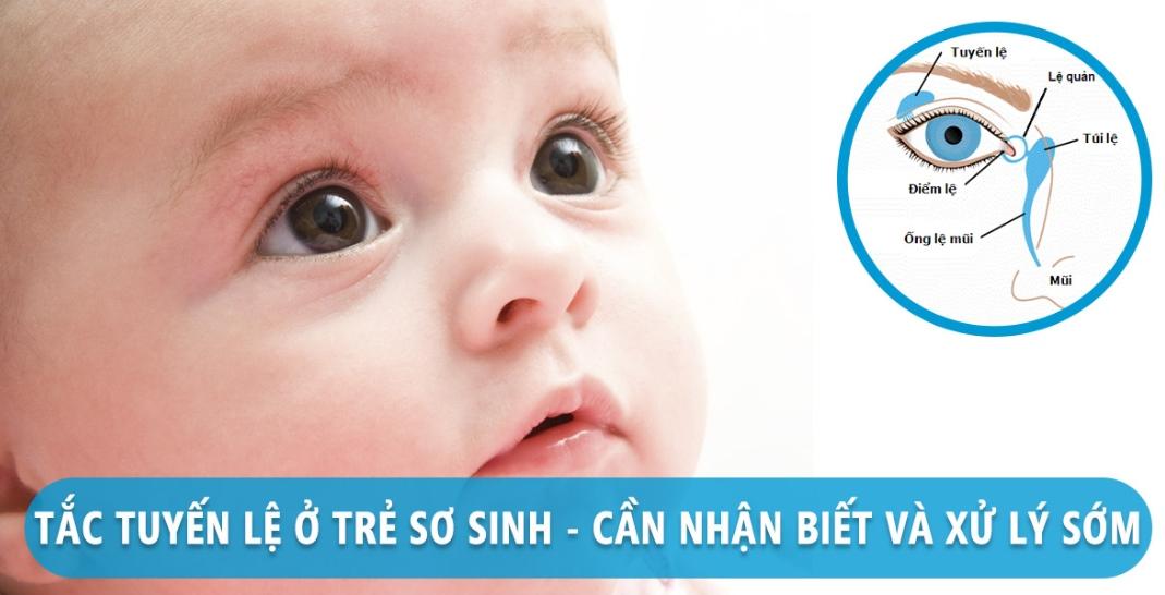tắc tuyến lệ ở trẻ sơ sinh